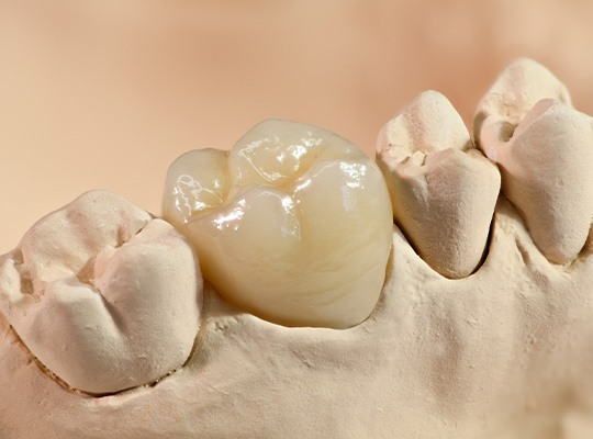 Closeup of smile model with dental crown